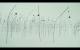 Bologna-Ustica - Boltanski per la memoria
